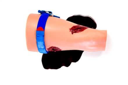 Tamowanie krwawień