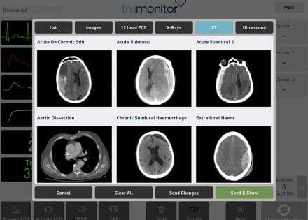 Wirtualny monitor pacjenta