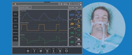 Drogi oddechowe i terapia tlenowa w COVID-19