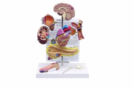 Model prezentujący wpływ cukrzycy na organizm