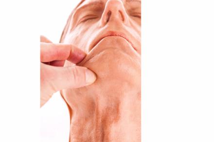 Iniekcja w obrębie twarzy