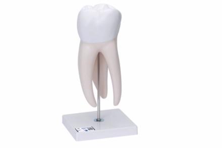 Gigantyczny model zęba trzonowego z ubytkami