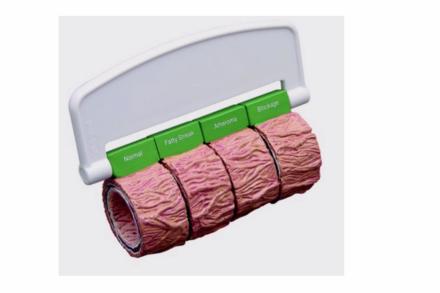 Model powiększonych fragmentów tętnicy ze zmianami miażdżycowymi na uchwycie
