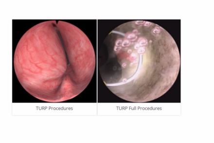 Moduł procedury TURP